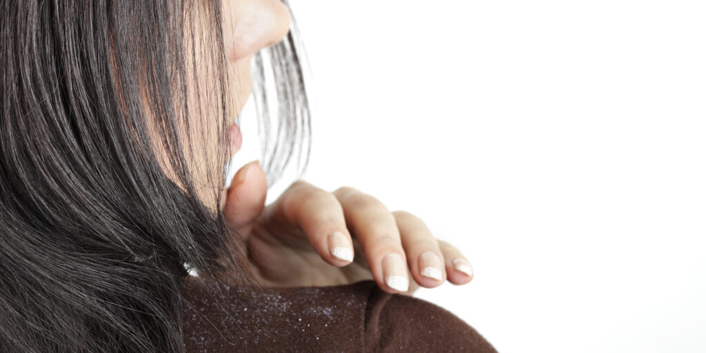 头皮屑多是什么原因?9种去除头皮屑小妙招