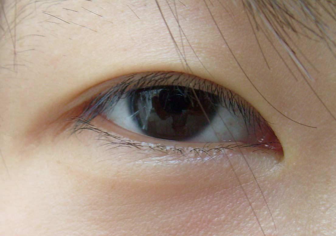 眼睛干痒点药水都无效!小心不是干眼症而是「睫毛倒插」伤害眼结膜